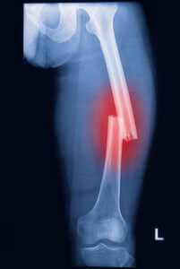 X ray image of a fracture of the leg